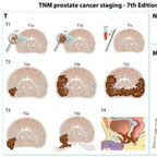 Prostate Cancer Staging TNM-staging-prostate-cancer