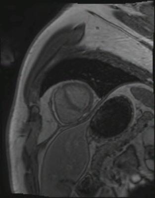 Péricardite chronique constrictive viabilite_3d PA