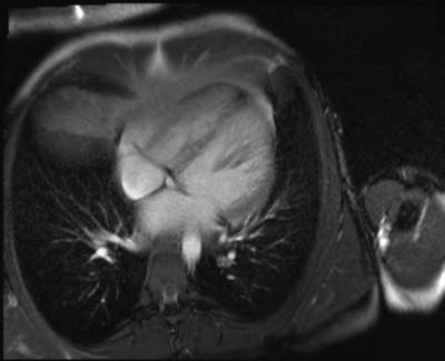 Non compaction du ventricule gauche CINE TrueFISP_4CAV IV