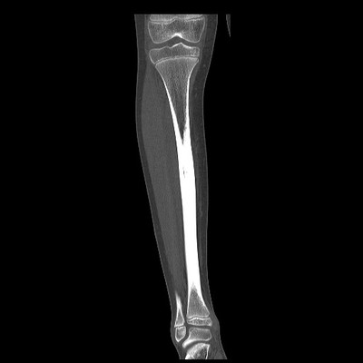 Ostéome ostéoïde cortical postérieur du tibia droit TDM sans injection coronale fenêtre osseuse