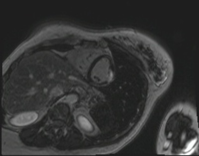 IDM latéro-apical localisé viabilite_3d_PA
