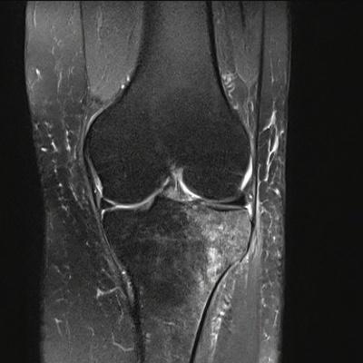 Fracture trabéculaire sous-chondrale  IRM genou Coronal DP Fat Sat