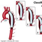 Endoprothèses aortiques Classification des endofuites aortiques