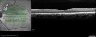 Foyer de toxoplasmose juxta-papillaire : papille de Jensen OCT OG 3 semaines