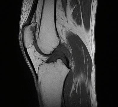 Kyste mucoïde du genou  IRM du genou Sagittal T1 TSE