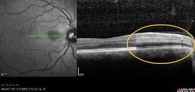 Occlusion de l'artère cilio-rétinienne reperfusée OCT OD