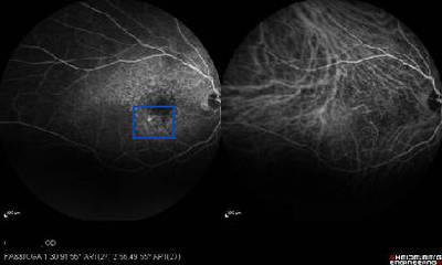 DMLA exsudative avec NVC bilatéraux  Angiographie Fluo/ICG