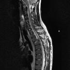 Fracture tassement par mécanisme de compression distraction de T2 avec atteinte disco-ligamentaire sagittal T2