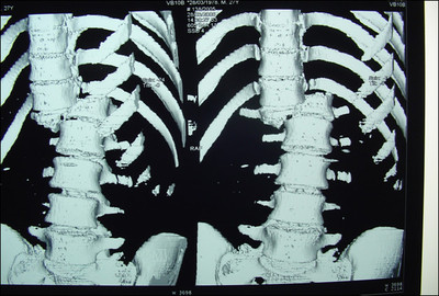 fracture type C de magerl image 6