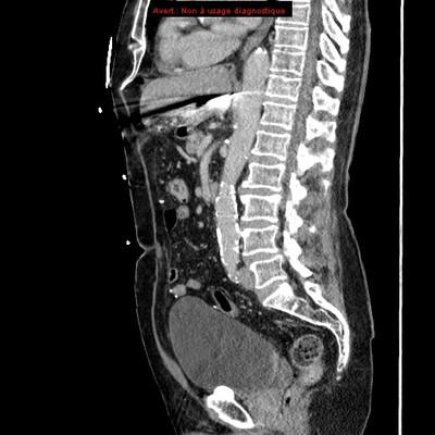 Traumatisme pénétrant abdominal par couteau  TDM Abdomen Sagittal