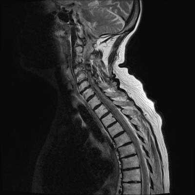 Aggressive vertebral angioma of T6 T2 TSE DIXON SAG_in