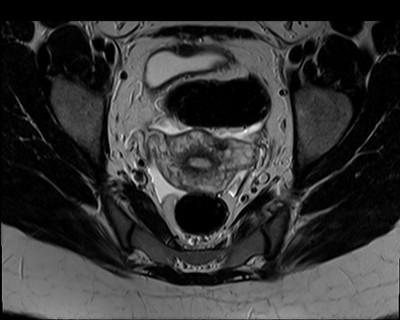 Utérus cloisonné.  IRM Pelvis Axial T2