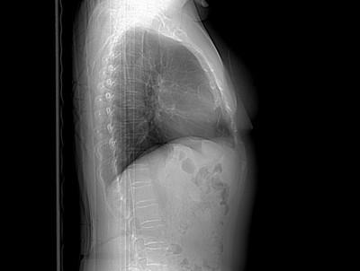 Tératome mature médiastinal  Radiographie Thorax Profil
