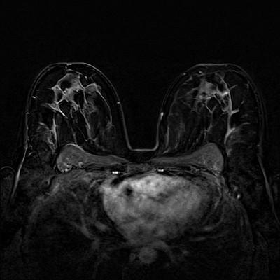Fibroadénomes et hamartome stables du sein droit,  ACR 2. Soustraction 5 min