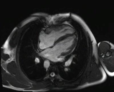 Correction complète de Fallot avec dilatation des cavités droites et insuffisance pulmonaire CINE TrueFISP_4 CAV