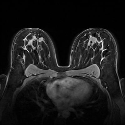 Stable fibroadenomas and hamartoma in the right breast, ACR 2. Dynamique FS 5 min