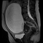Adénocarcinome invasif mixte ovarien droit Sagittal T2