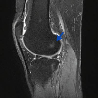 Kyste mucoïde du genou  IRM du genou Sagittal DP Fat Sat