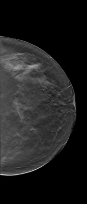 Breast asymmetry with a small nodule, the aspect of which suggests a fibroadenoma within denser glandular tissue on the right. LCC Tomosynthèse
