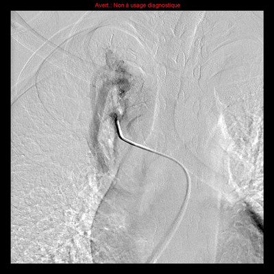 Hereditary hemorrhagic telangiectasia with lung arteriovenous malformation Selective angiography