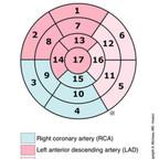 Anatomy of the heart - 17 segments model bull's-eye-display-heart-segmentation-