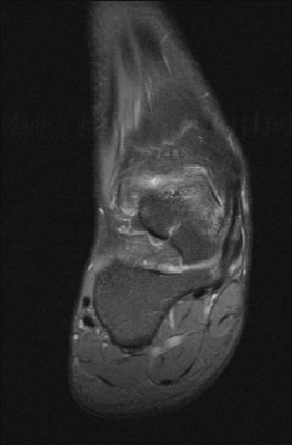 Ostéome ostoïde du bord supéro-médial du dôme talien DP FS Coronal