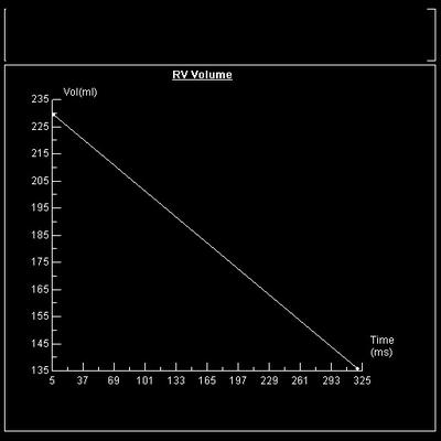 Dysplasie arythmogène du ventriule droit (DAVD) : critère majeur en IRM FEVD