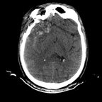 Severe cranioencephalic injuries, Carotid artery dissection, Aspiration pneumonia, Pelvic fracture Head CT, Axial plane, Soft tissue window