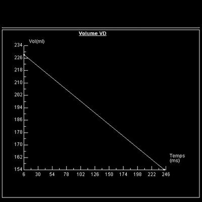 Non compaction du ventricule gauche fonction vd