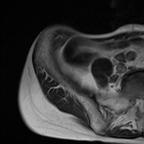 Lésion néoplasique endométriale  Axial T2 Grand Champ