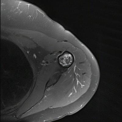 Tumeur à matrice cartilagineuse de l'humérus  IRM Axial DP Fat Sat