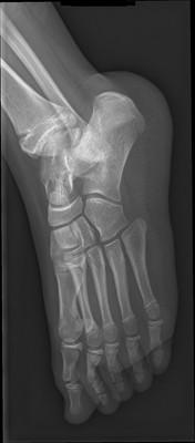 Syndrome de l'os naviculaire accessoire Radiographie pied gauche 3/4