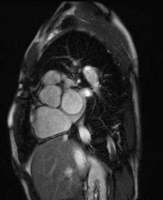 Correction complète de Fallot avec dilatation des cavités droites et insuffisance pulmonaire CINE TrueFISP_PA