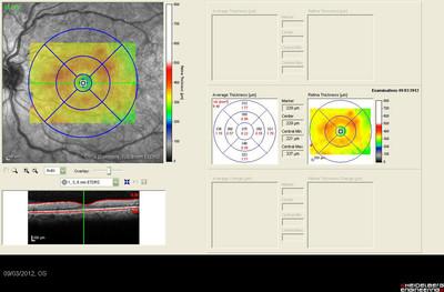 Rétinopathie diabétique préproliférante puis floride bilatérale Mapping ODG
