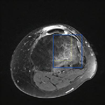 Fracture trabéculaire sous-chondrale  IRM genou Axial DP Fat Sat