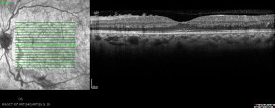 Rétinopathie diabétique préproliférante puis floride bilatérale OCT maculaire OG M6