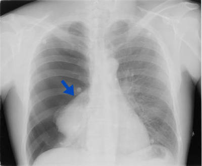 Pneumothorax complet droit AP Chest X-ray