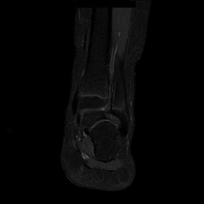 Syndrome de l'os naviculaire accessoire IRM DIXON Coronal (FS)