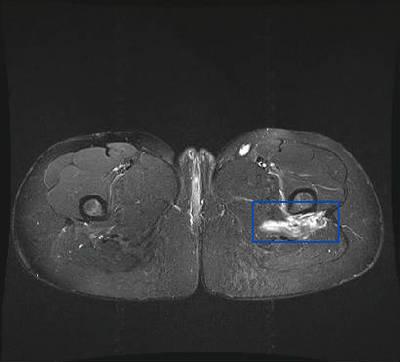 Déchirure musculaire  IRM hanche axial STIR