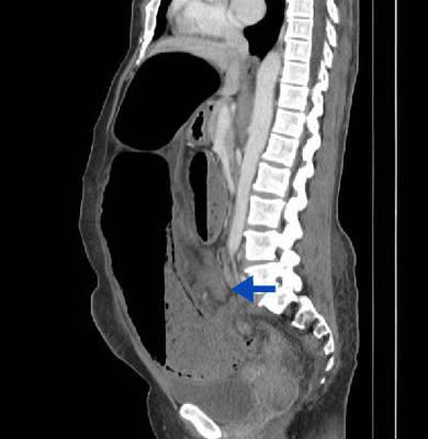 Volvulus du sigmoïde TDM Abdomen Pelvis Sagittal Portal