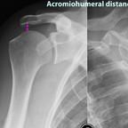 Rotator cuff rupture Acromiohumeral-distance-rotator-cuff