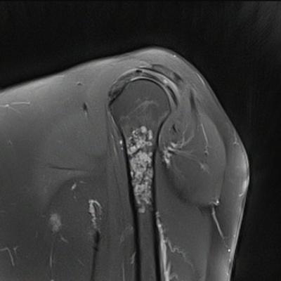 Enchondroma of the proximal humerus Sagittal DP Fat Sat MRI