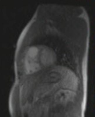 Correction complète de Fallot avec dilatation des cavités droites et insuffisance pulmonaire tfl_sr_128_4sl_PAT3_GADO