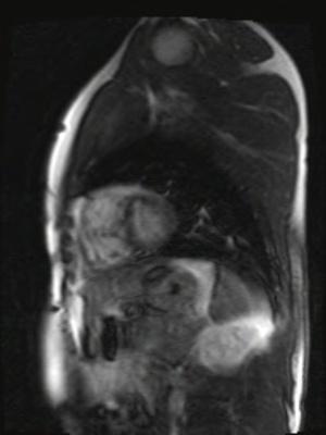 Correction complète de Fallot avec dilatation des cavités droites et insuffisance pulmonaire TI-Scout 256