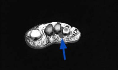 Nevrome de Morton avec bursite  IRM Membre inférieur Coronal T1