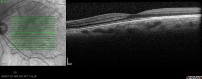 Cataracte sous capsulaire postérieure et astigmatisme cornéen - Implantation multifocale torique OCT maculaire OG