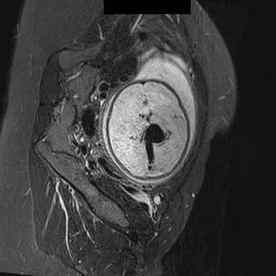 Anevrysme de la veine de Galien   IRM STIR axial
