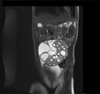 Tumeur de la granulosa.  IRM T2 HASTE coronal