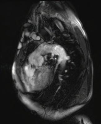 Correction complète de Fallot avec dilatation des cavités droites et insuffisance pulmonaire CINE TrueFISP_V P