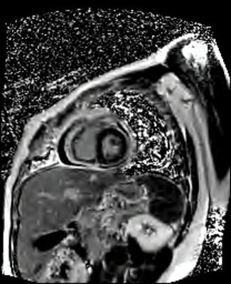 Péricardite aiguë constrictive PSIR-TFL PA_PSIR